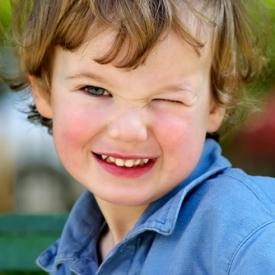 конъюктивит у ребенка,воспалились глаза