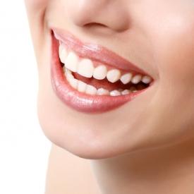 зубы,как отбелить зубы,отбеливание зубов,что нужно делать, чтобы отбелить зубы