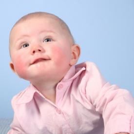 аллергия,аллергия у ребенка