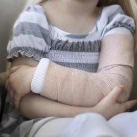 вывих у ребенка,нянькин локоть,подвывих у ребенка,что делать при вывихе у ребенка,перелом у ребенка что делать?