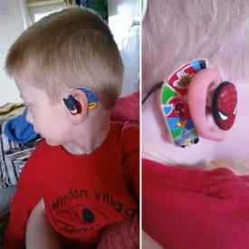 слуховой аппарат,фото